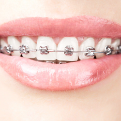 Ortodoncias